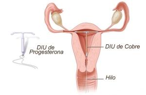 diu-anticonceptivo